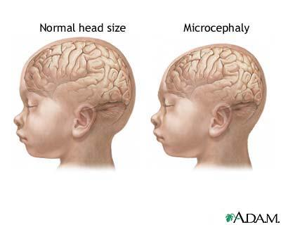 What is the IQ of someone with microcephaly?