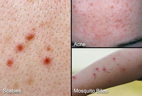 What are the first symptoms of scabies? What is the very first signs and symptoms that define a rash as a scabies rash? .