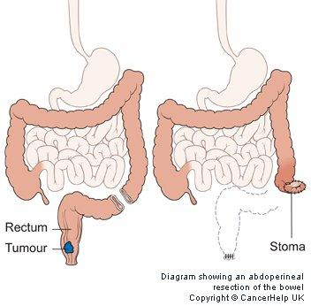 Abdominoperineal Resection Complications - Doctor insights on ...