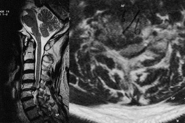 retrolisthesis of c3 and c4 What would you do with foraminal steosis, bulding disc and a also--at c2-c3 there is a minimal disc bulge,at c3-c4 a slightly trace retrolisthesis and disc.
