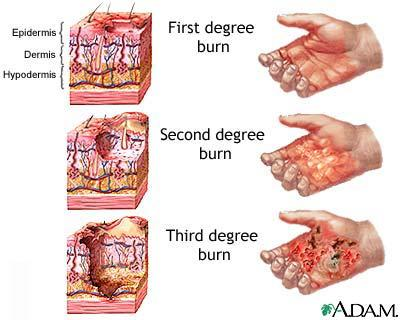What are the degrees of burns? Is first degree the worst? Describe the characteristics and treatments of the 3 degrees of burns.