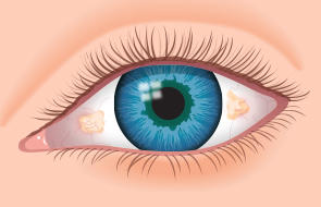 What causes bubble in white of eye after surgery and anesthetic?