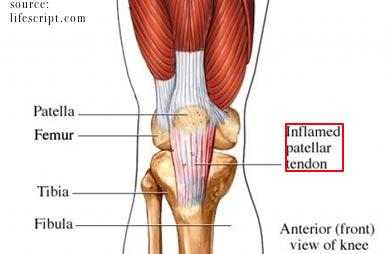 Is it normal when using glyceryl trinitrate for patella tendonosis for it to hurt when its applied and make the knee more sore after exercise?