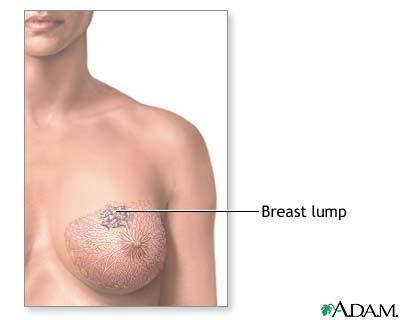 What are the chances of a malignant breast lump decreasing?