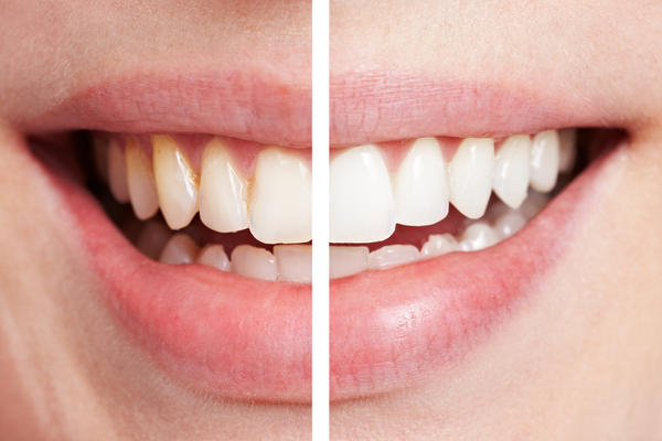 I am 27 years old. Is laser teeth whitening more effective if you're older? I asked my dentist about laser teeth whitening and he said that he didn't think i'd see much of a difference because of my age. I think my teeth are stained, but maybe they're not