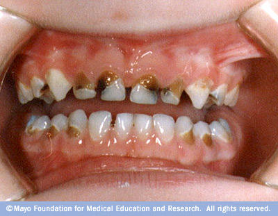 How can you fix stained/discolored teeth inexpensively safely?