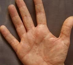What could cause dry skin on the palm of one's hands?