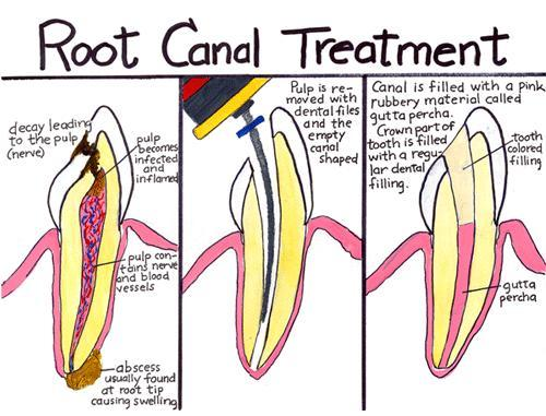 Could having a cleaning and immediately following a bleaching of my teeth cause an abscess resulting in 2 root canals? I have recently had these 2 procedures back to back and am now undergoing 2 root canal procdures.  Could this have been caused by the bl