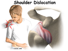 Dislocation Injuries Pain Shoulder Sports Medicine