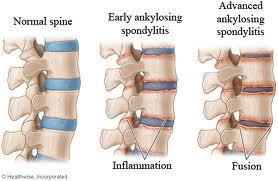 Is there anything to help with pain related to my as. Usually its just hip and back but now its also knees and one wrist. Help?