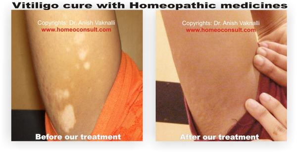 Can natural / homeopathic remedies cure vitiligo?