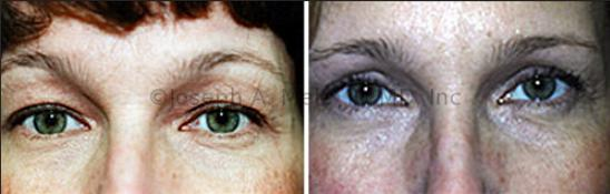 What is it like to have eyelid surgery?