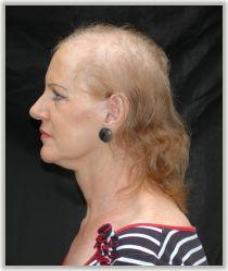 What causes alopecia in women?