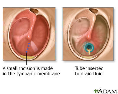 What is the procedure like to insert ear tubes?