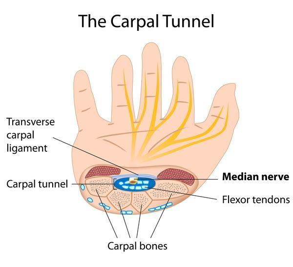 What areas of the hand (and arm) does carpal tunnel syndrome affect?