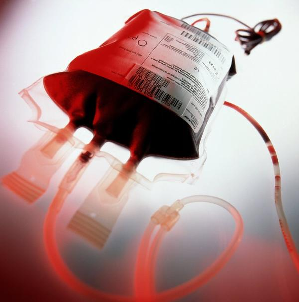 The blood of choic for an exchange transfusion of an ABO hdn in a b-postive baby.. Is it o or b postive packed or whole blood..?