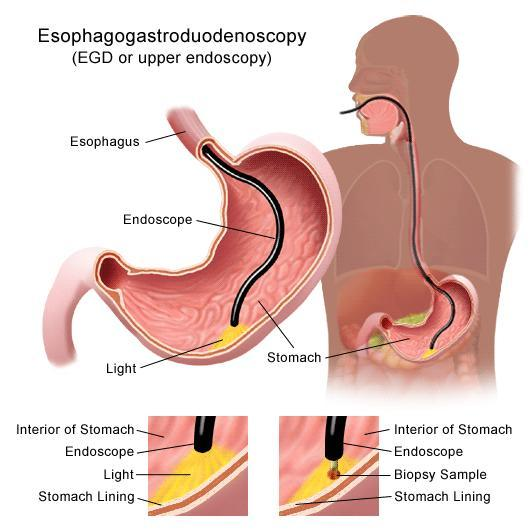 I had gbladder removed 3wks ago, now ER suspect ulcer in stomach. Why is the stomach tender and painful to move? What could be going on?