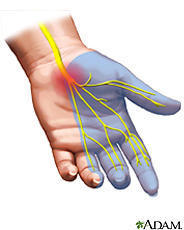 What are some signs that indicate that I have carpal tunnel?