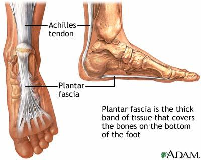 I suffer with plantar fasciitis. What can I do to alleviate the symptoms?