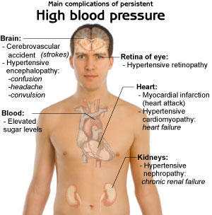 Can high blood pressure. Be inherent?  .. And when i get stressed my BP goes skyhigh and my head really starts hurting and my eye feels like its drop
