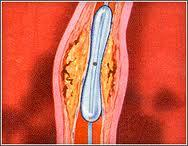 Do different types of angioplasty techniques or stents have different success rates?