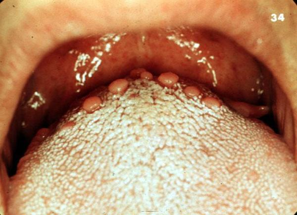 The doctor said I have post nasal drip.Can the bumps on the back of my tongue be from post nasal drip and mucus build up.   The bumps are way  in back?