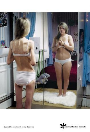 How does bulimia usually start?