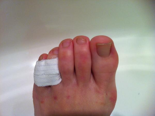 Can I play soccer with a broken pinky toe? Two and half weeks ago I broke my toe during a soccer game. The doctor said it was a simple fracture and that I should stay off of it for a while. I've been buddy taping it and staying off of it. The swelling is