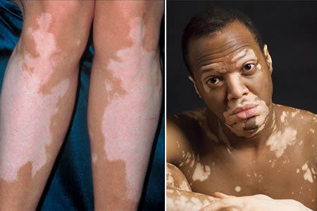 What food to eat or what food to avoid for vitiligo patient?