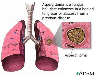 Pls can u advice what is an allergic bronchopulmonary aspergillosis? And what test are required to diagnose if one's lung condition is caused by this?