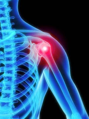 Right shoulder pain and loss of strength. What causes this?