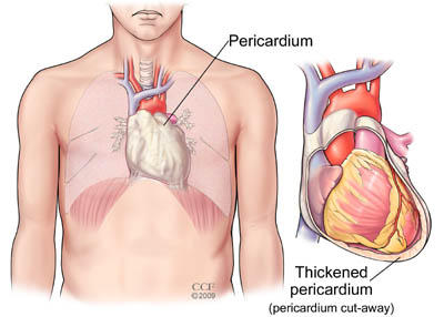 What technology is used to treat pericarditis?