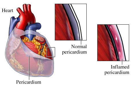 Which inflammatory diseases cause pericarditis?