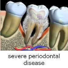 When a woman has periodontal disease, what does it mean?