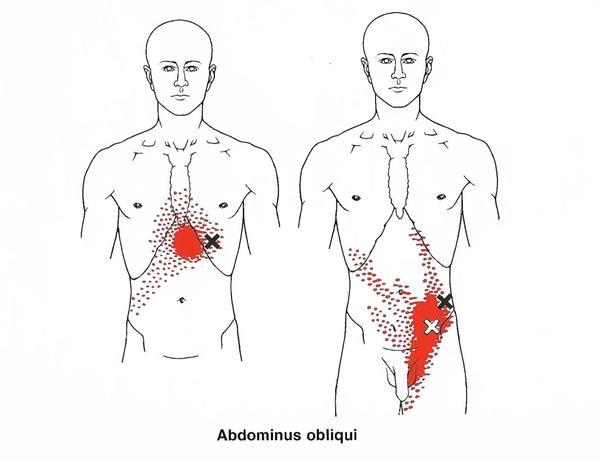 Loin Pain Hematuria Syndrome Symptoms
