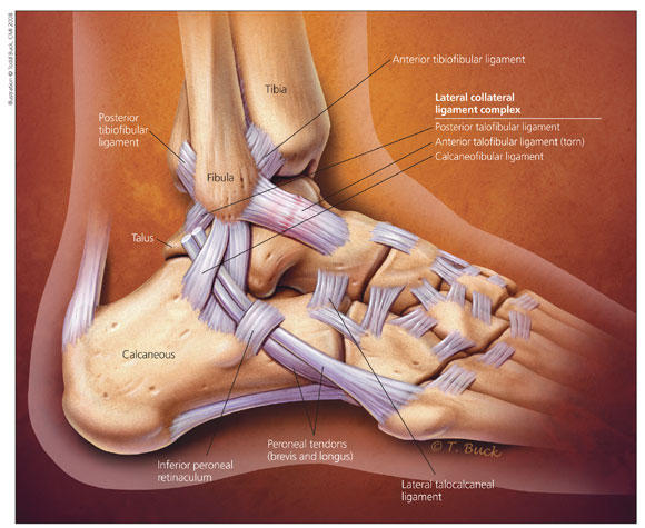 When to return to play after an ankle sprain.?