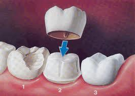 How long after root canal will i be able to get a crown?