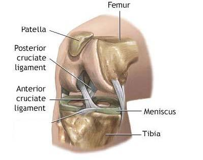 Pain and stiffness after ACL surgery?