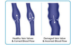 Venous_insufficiency