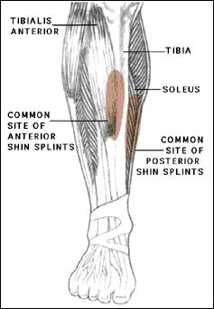 How can you cure shin splints?