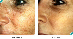 What can I use to remove age spots on my face? I have tried several creams, but nothing seems to help.