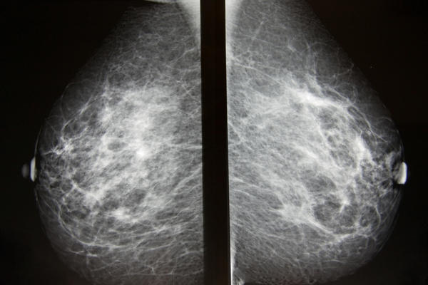 What does new asymmetrical density findings on a mammogram report mean?