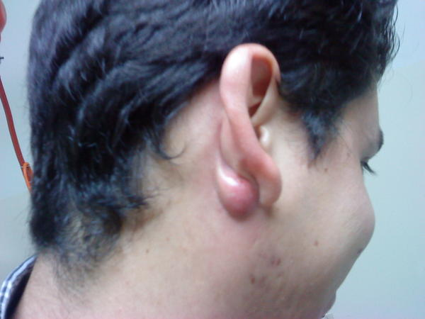 I have a lump behind my ear, on the side of my head. It doesn't hurt, but it's been there for a while. What is it most likely? Should I see a doctor?