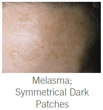 How can I tell if I have melasma? How will I know if the dark spot on my face is melasma or just a sun spot? .
