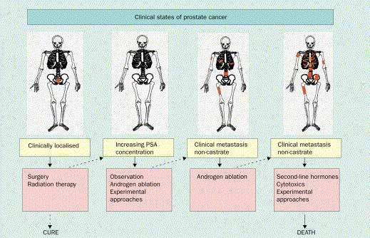 Treatment for prostate cancer by stage.