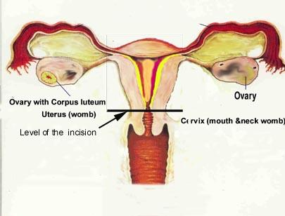 Possible for pregnancy after partial hysterectomy?