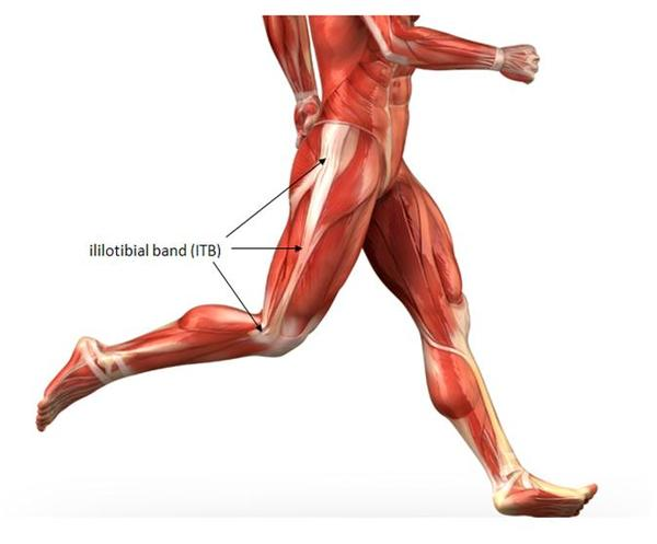 What is the definition or description of: iliotibial band syndrome?