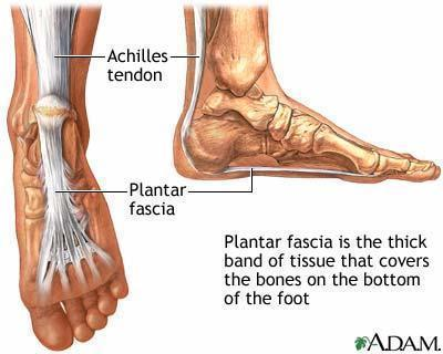 What are options of treating plantar fascitis?