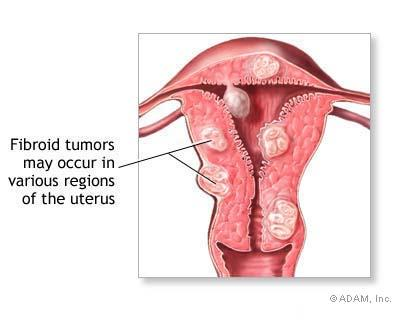 What can cause vaginal bleeding besides a normal period, std's or cancer of the reproductive organs?
