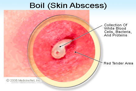 How long does a wound takes to heal! After cutting a boil open?